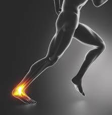 Runner Heel Pain